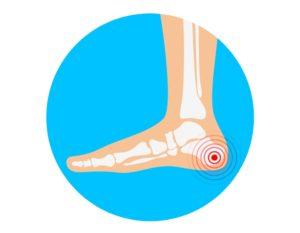 Heel-Bone_Spur-Pain