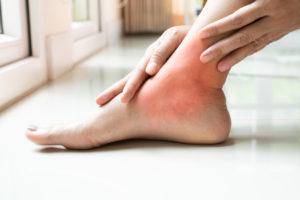 women leg ankle gout/painful, women touch the pain ankle leg gout