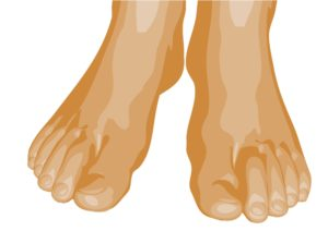 Image of feet related to Hammertoe problems