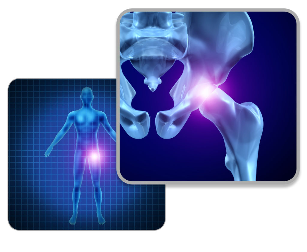 Human hip joint pain concept as skeleton and muscle anatomy of the body with sore joints as a painful injury or arthritis illness symbol for health care and medical symptoms with 3D illustration elements.