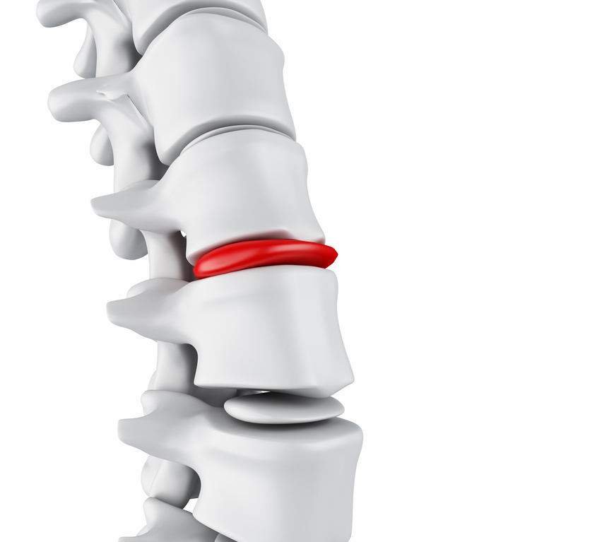 3d illustration. Close-up of bone structure and intervertebral discs. Herniated disk concept.